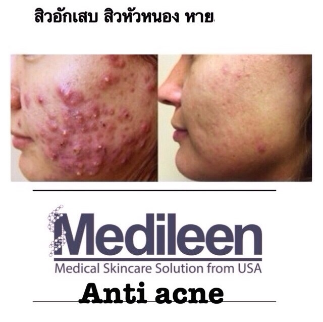 medileen anti acne